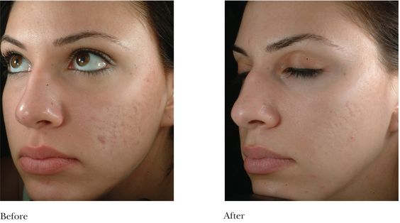microdermabrasion before and after pores