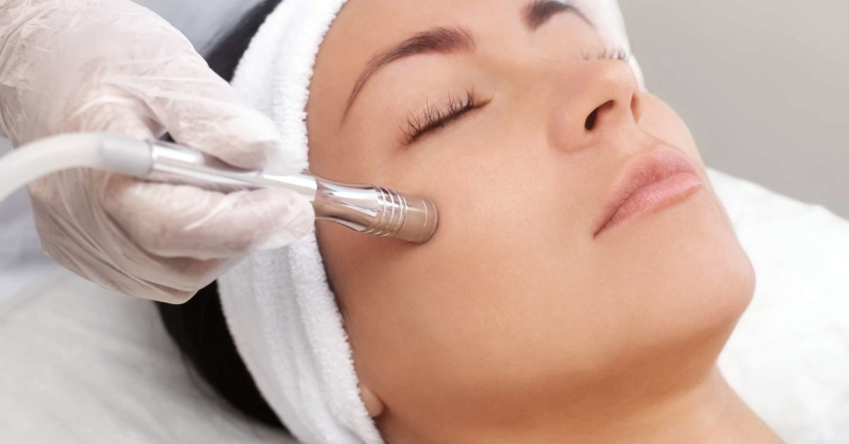 benefits of microdermabrasion before and after