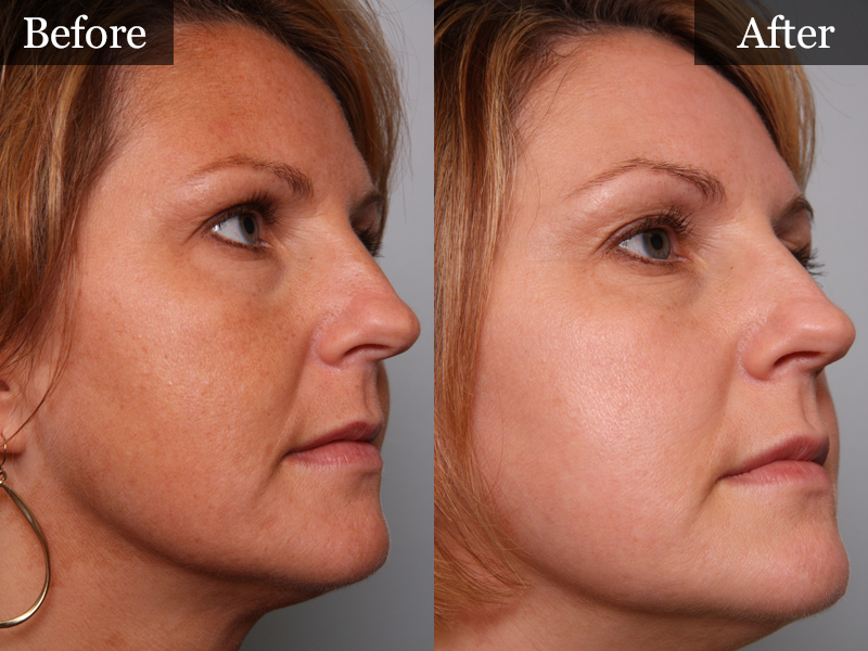 microdermabrasion for stretch marks before and after