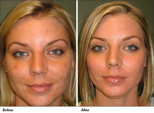 pmd microdermabrasion before and after