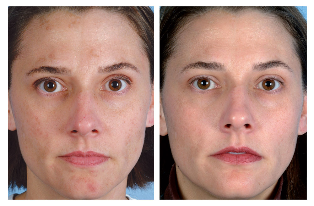 what is microdermabrasion facial