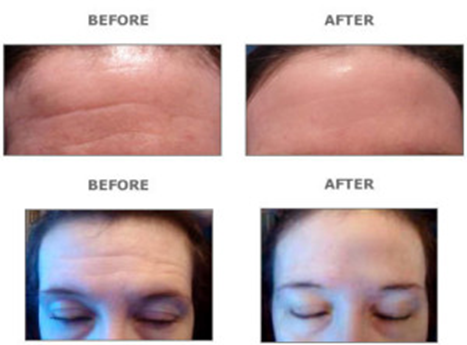 what does microdermabrasion do