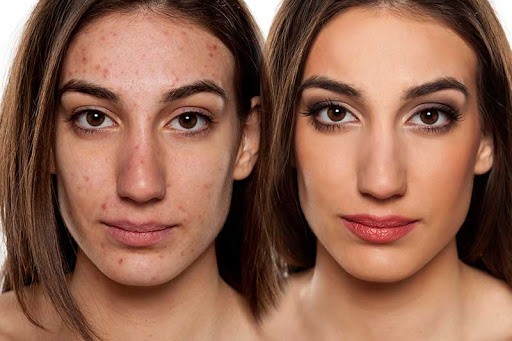 microdermabrasion before and after acne scars